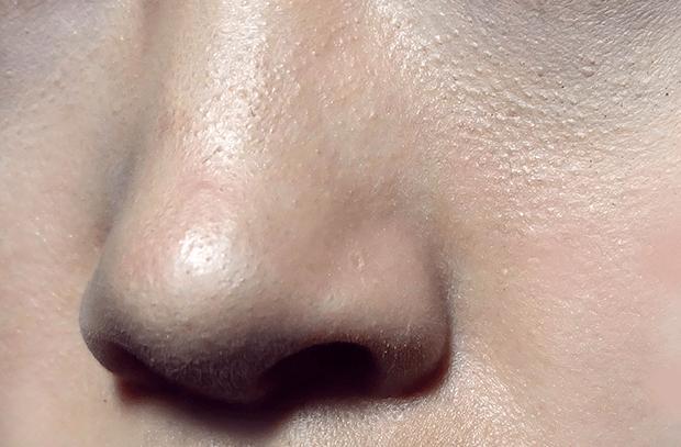 Pores Hidung